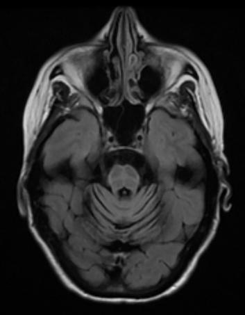 成人の進行性運動失調における診断と治療:種類/特徴/MRI所見 神経内科の論文学習