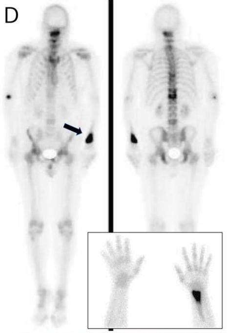 骨病変を伴うミオパチー(Clinical Reasoning)|神経内科の論文学習