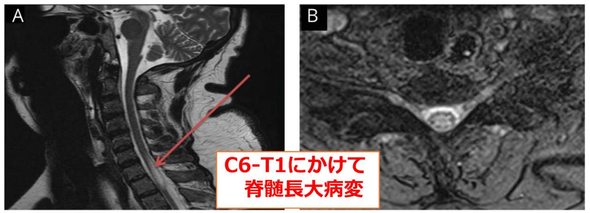 脊髄病変を伴った急速進行性のプリオン病|神経内科の論文学習