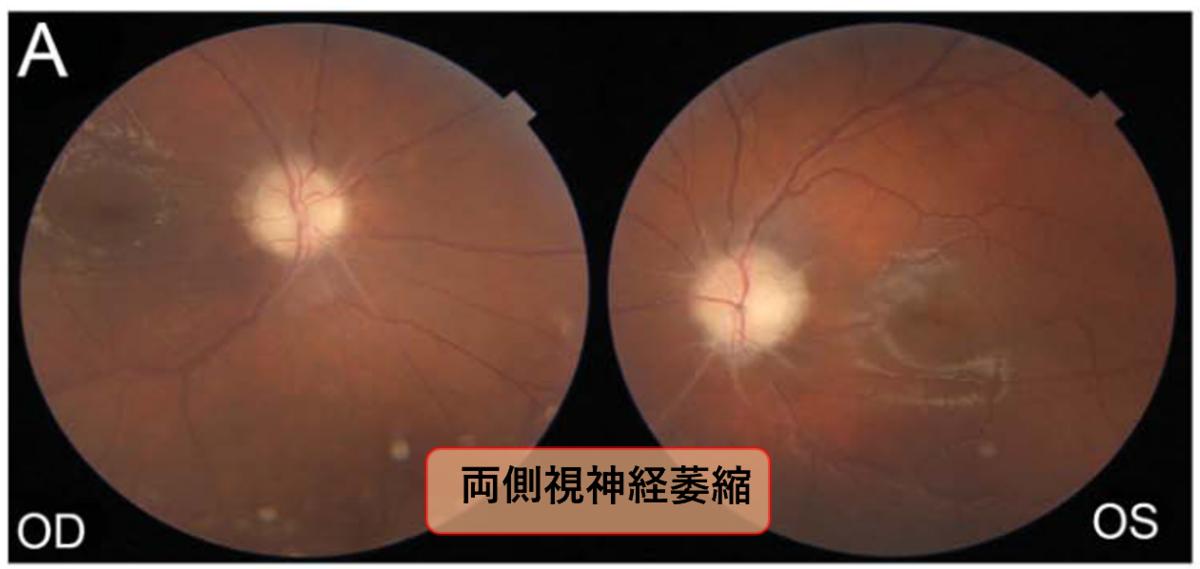 思春期発症の両側視力障害を呈した慢性無菌性髄膜炎|神経内科の論文学習