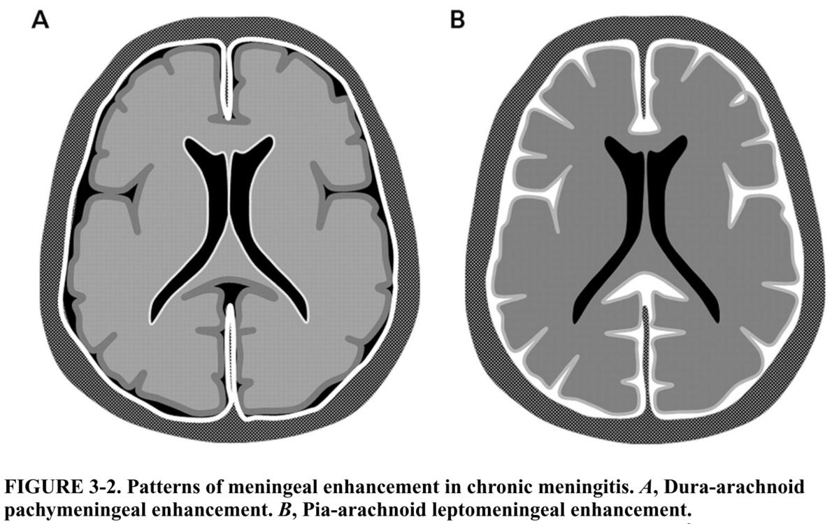 慢性髄膜炎のアプローチに関する備忘録|神経内科の論文学習