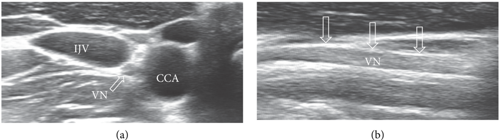 パーキンソン病の診断における迷走神経超音波検査の有用性