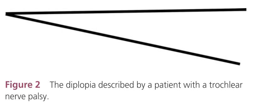 研修生・神経非専門医向け神経診察時の実践的なtips|神経内科の論文学習