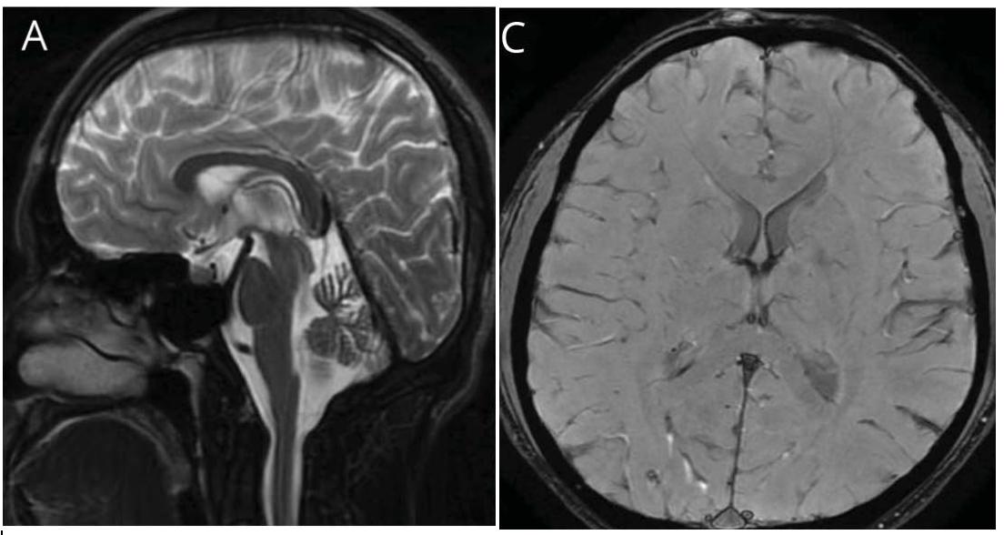 頭部振戦を生じた低セルロプラスミン症例-Clinical Reasoning|神経内科の論文学習