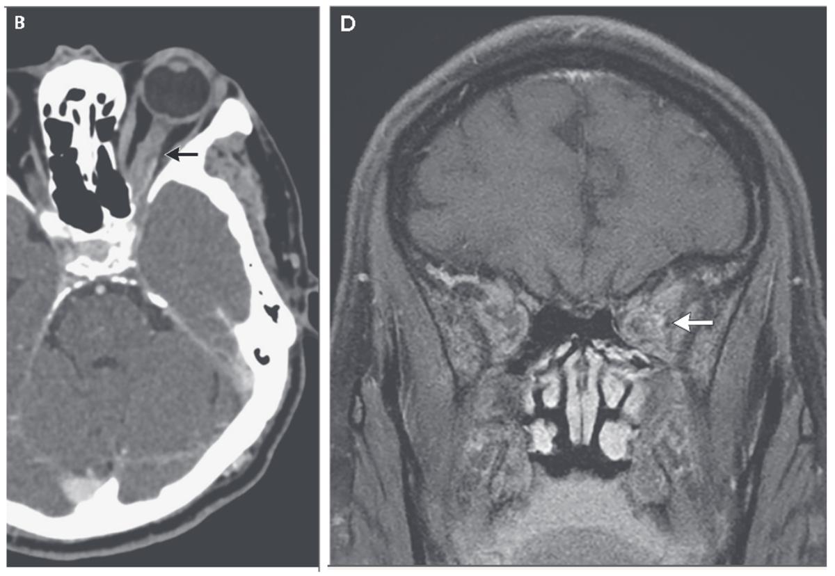眼痛と視力障害を生じた血液疾患の症例|神経内科の論文学習